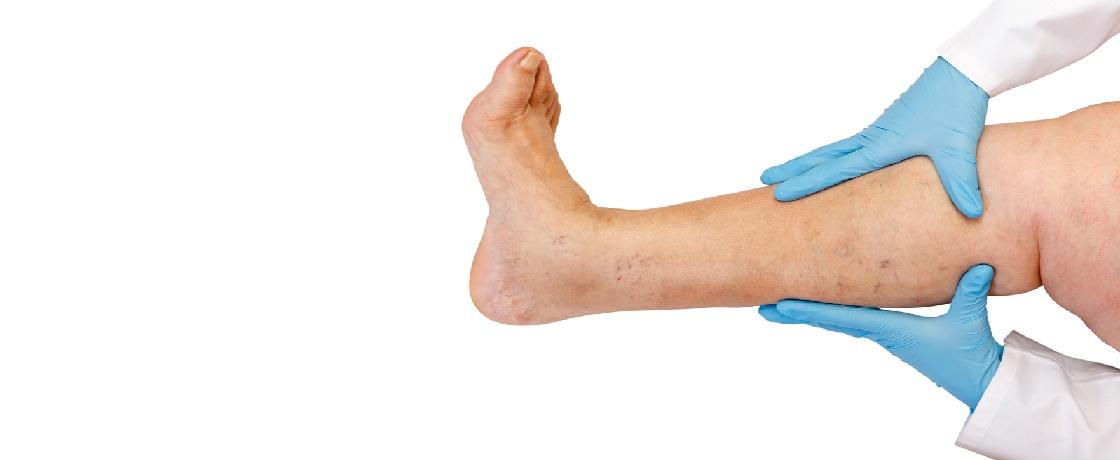 bacak varis, endovenöz lazer ablasyonu