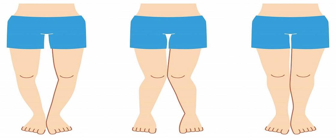 fibromiyalji, yumuşak doku romatizması, fibromiyaljide diyet