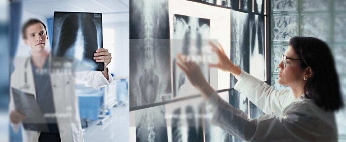 radyolog, radyoloji