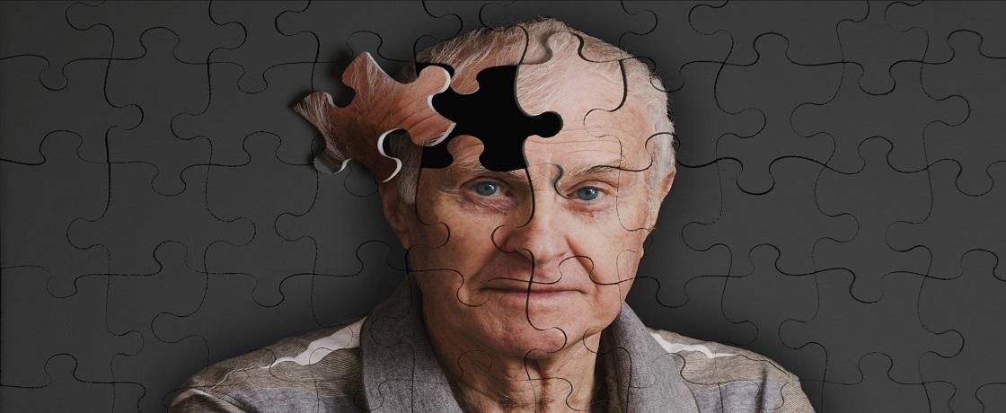 alzheimer, unutkanlık, hafız, demans