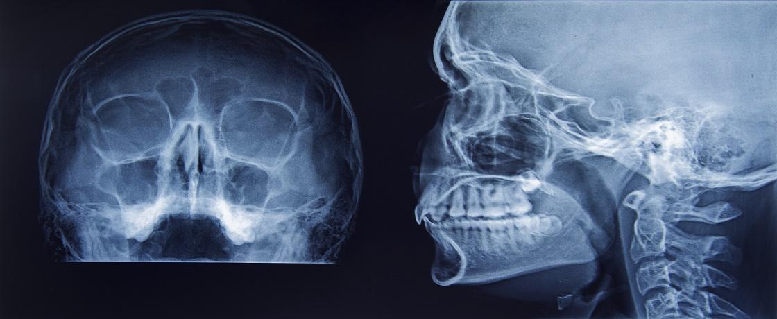 X-Ray, kafa tası, röntgen, baş, inme, felç
