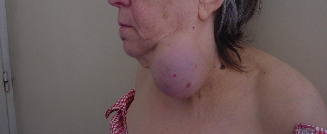 tiroid nodül, tiroit nodülü, guatr, boğaz, hipotiroidi, tsh, t3, t4, metabolizma