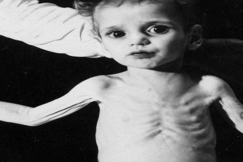 malnutrisyon, dünyada açlık, göç, kuraklık, savaş ve beslenme sorunları