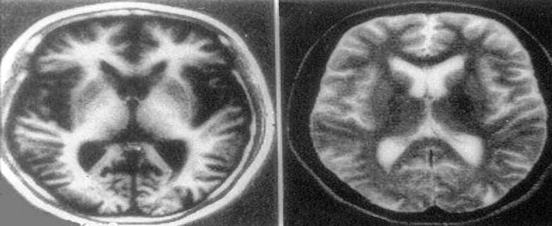nöroradyolojik bulgu, şişmanlık ve unutkanlık, beyin, redyoloji