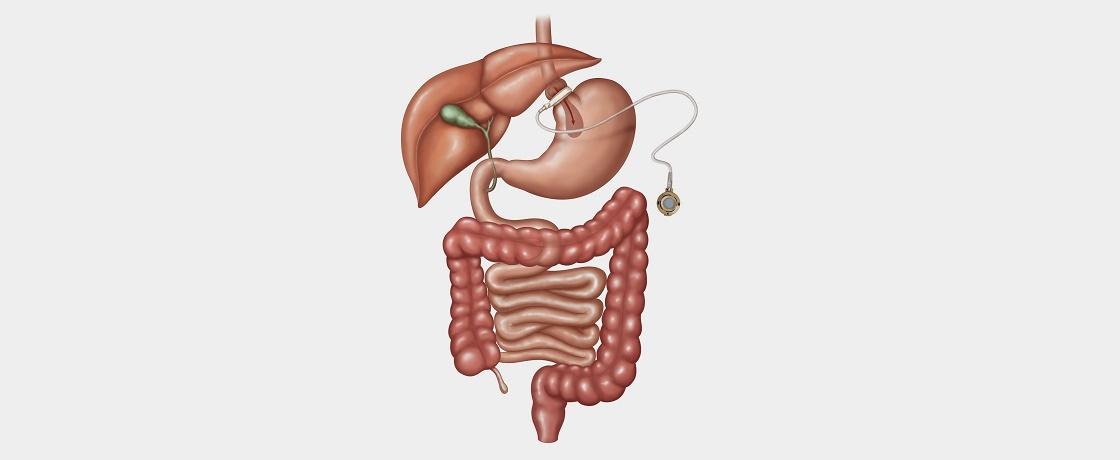 sindirim sistemi hastalıklarında beslenme
