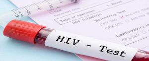 hıv, HIV, AIDS Beslenme diyet test