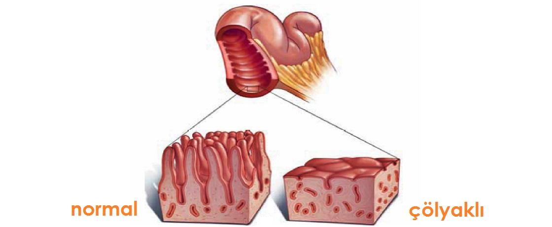 Çölyak, arpa ve çölyak, buğday ve çölyak, çavdar ve çölyak, Çölyak hastalığı, Çölyak hastalığı nasıl bir rahatsızlıktır, Çölyak hastalığı nedir, çölyak ve bağışıklık sistemi, diyetisyen rümeysa çelik, gluten enteropatisi, gluten hassasiyeti, kalıcı intolerans, oto-immün sistem rahatsızlığı, oto-immün sistem rahatsızlığı nedir, proksimal ince barsak alerjisi, rümeysa çelik, villi, villus, willi, yulaf ve çölyak, Buğday, arpa, yulaf ve çavdar yerine pirinç, patates, nohut, mercimek, kestane, soya, fasulye, fındık, çölyak, celiak, çöyak hastalığı, çölyaklılar neleri yiyemez, çölyaksız gıdalar, glutensiz gıdalar, glutensiz besinler, çöyak diyeti, çölyak önerileri, çölyakta Karaağaç ve kavunağacı bitkisinin çaylar,