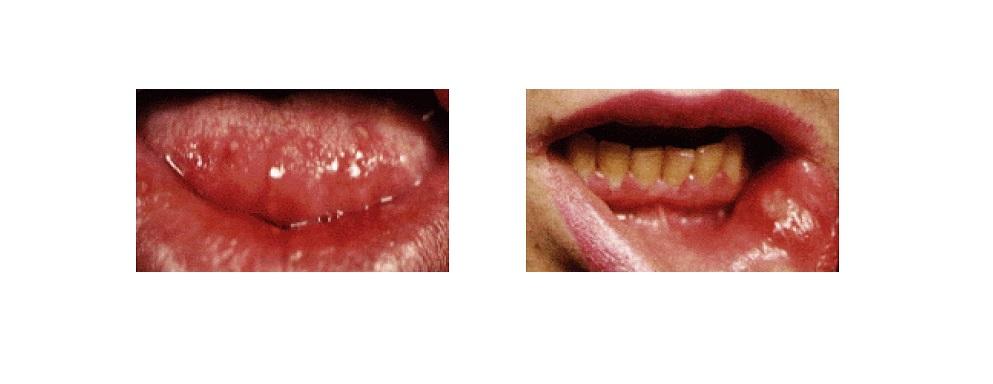 ağız, aft, uçuk, oral aft, oral mukozit (1)