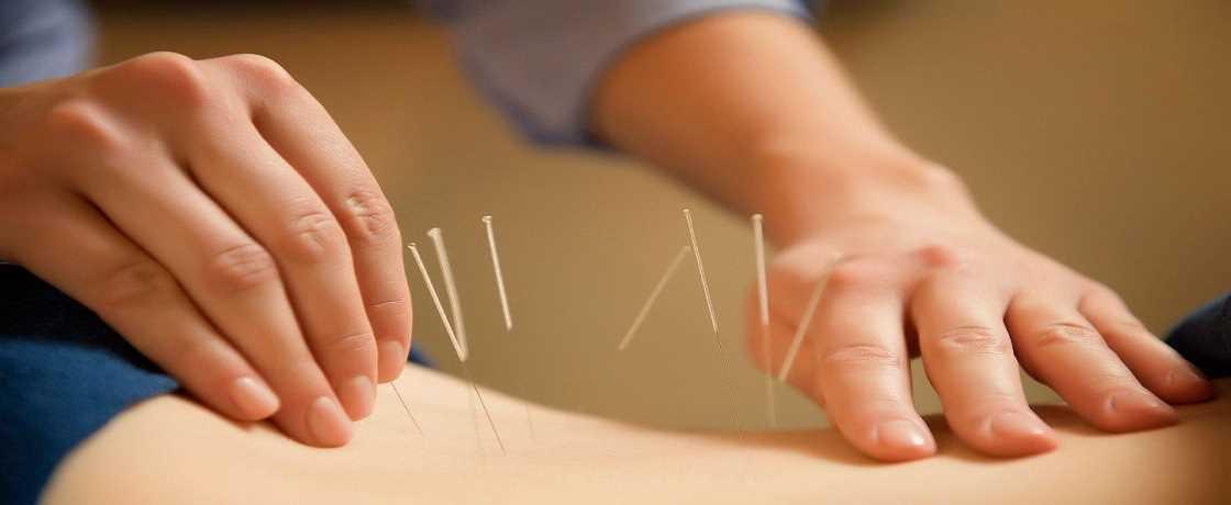 akupunktur diyeti