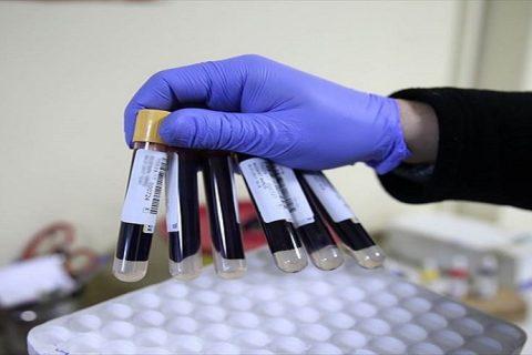 demir yetersizliği anemisi, biyokimya, eritrosit, alyuvar, demir, anemi, fe